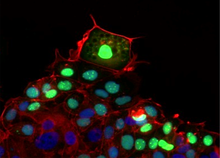 leader cells move to cover a wound