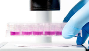 stem cell culture