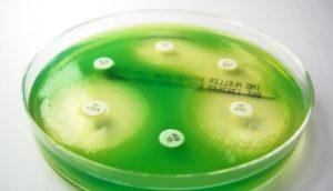 green Pseudomonas aeruginosa