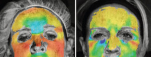imaging shows wrinkle changes