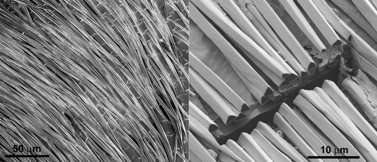 SEM image of ant hairs