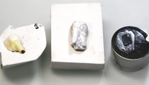 a natural tooth and two artificial teeth