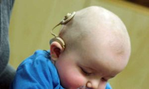 baby with cochlear implant