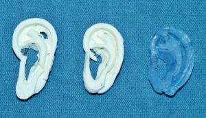 models for ear reconstruction
