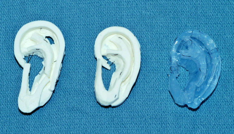 models for ear reconstruction