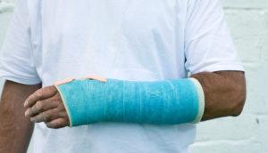 cast on man's arm