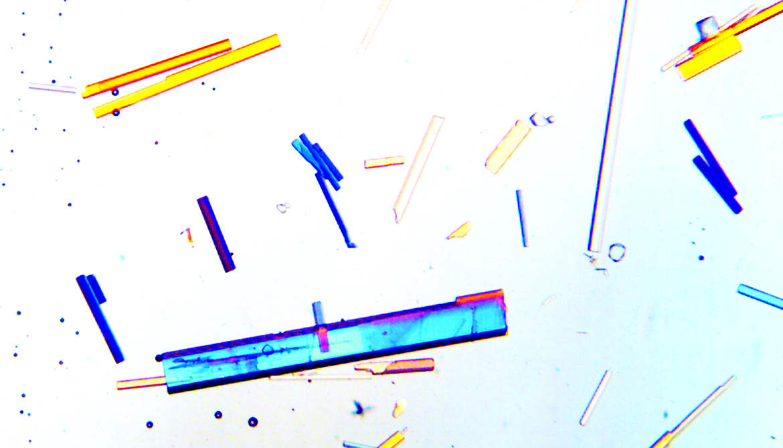 sodium oxalate crystals