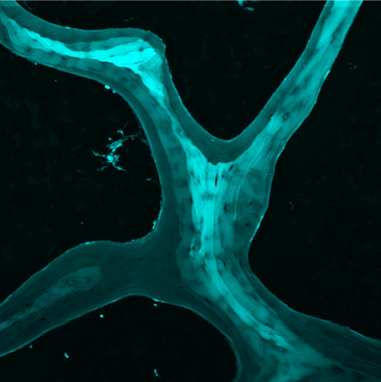 microscopic slide showing a region of cancellous bone