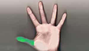 thumb regeneration