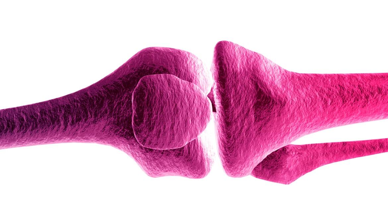 B cells create 'bone-chewers' in rheumatoid arthritis