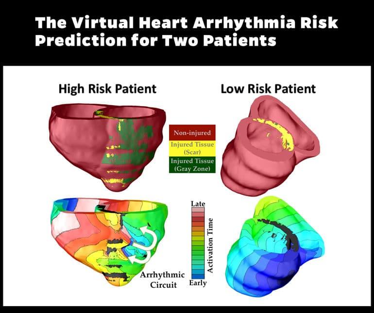 3d heart models