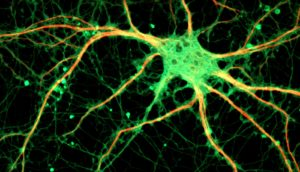 neuron from rat hippocampus