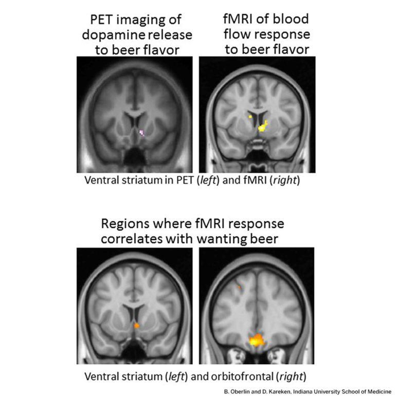 brain scans - beer flavor