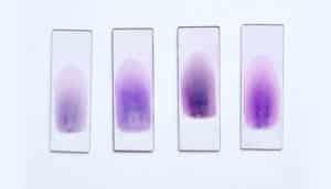 blood samples on slides