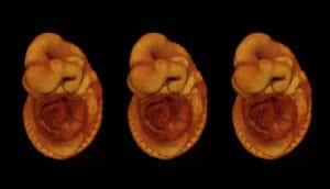 mouse embryo x3