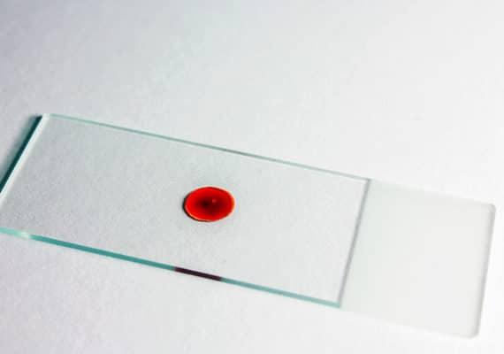 blood sample on slide
