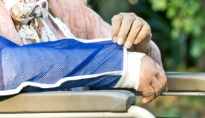 elderly woman with arm cast