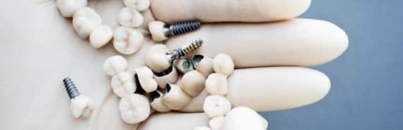 dental implants in hand