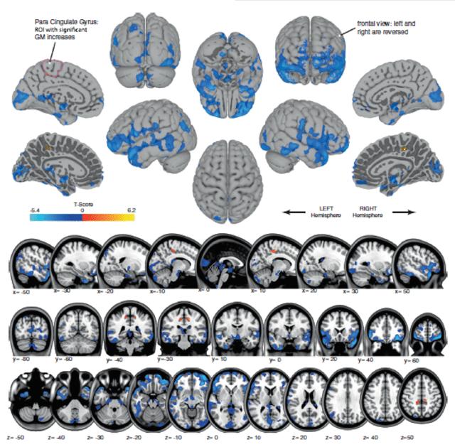 brain changes in astronauts