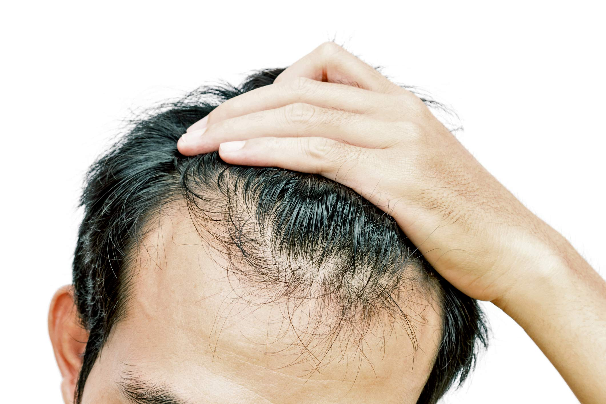 Erectile Dysfunction From Hair Loss Drugs Can Linger Futurity