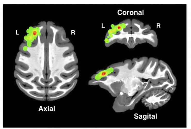 locations in the dorsolateral prefrontal cortex