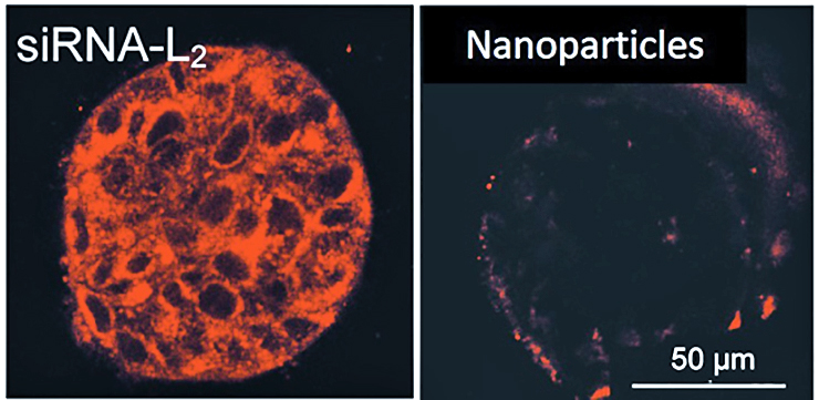 Microscopy photo of a tumor sample