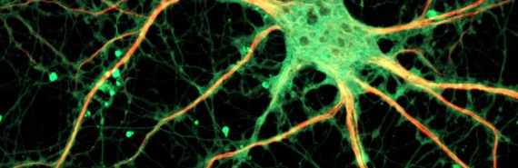 mouse neuron in green and orange