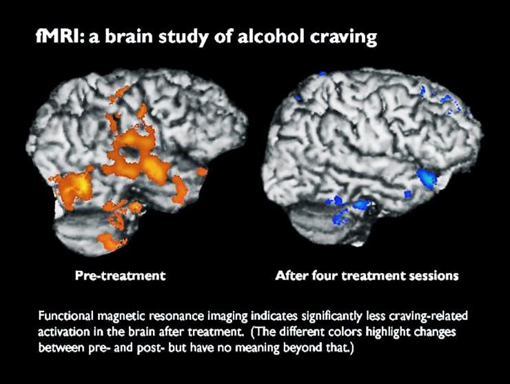 fMRI imaging of craving