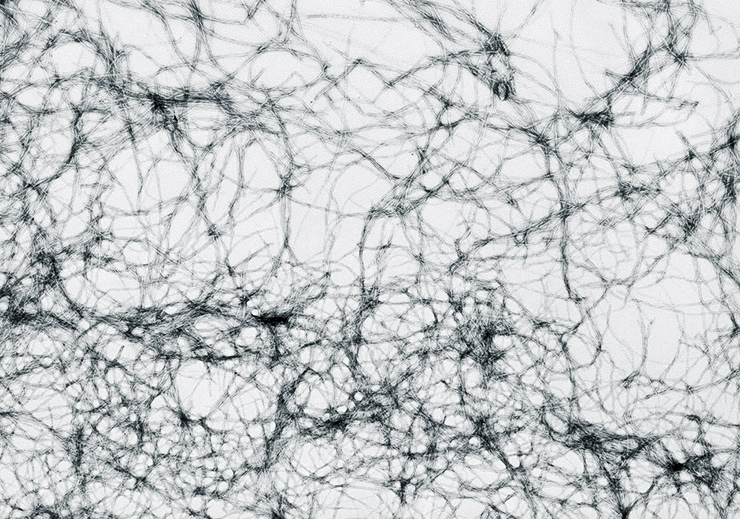 amyloid fibers