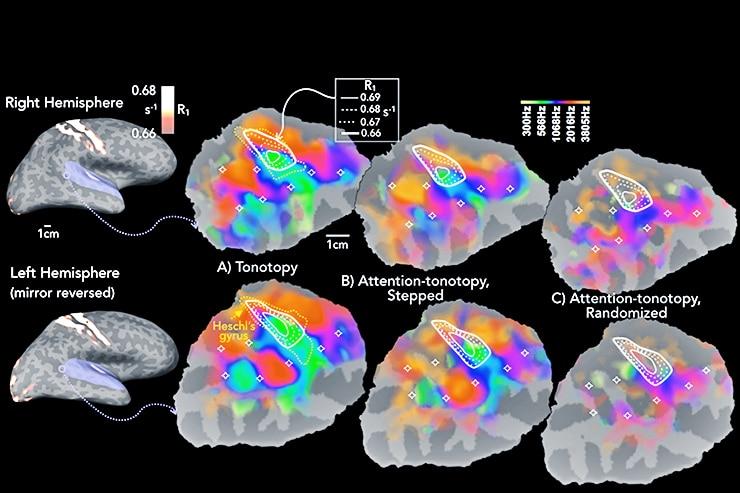 brain and sound