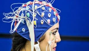 EEG cap (seizures, epilepsy, + artificial intelligence)