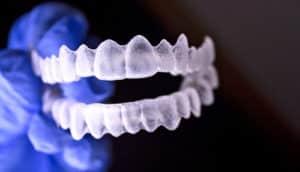 invisalign-style teeth mold