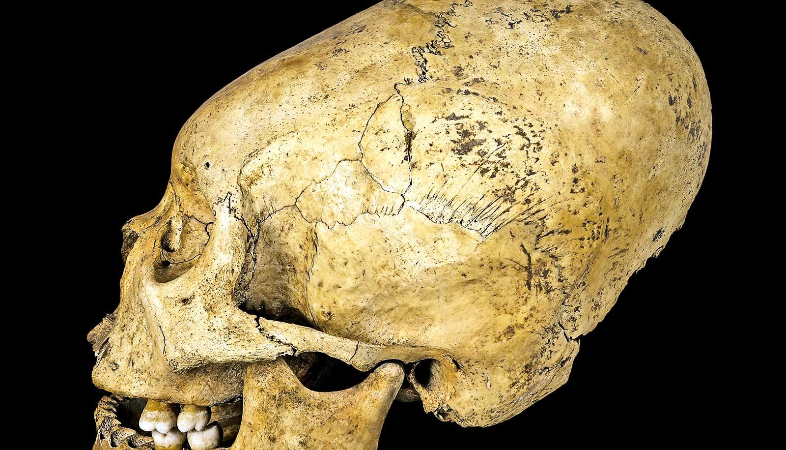 Baby Skull Binding Common Among Ancient Peru Elite Futurity