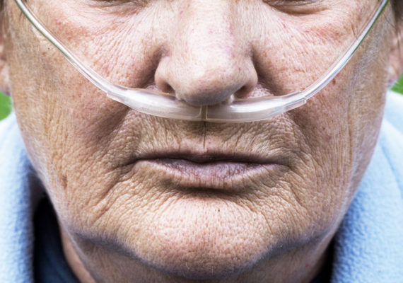 woman with COPD cannula