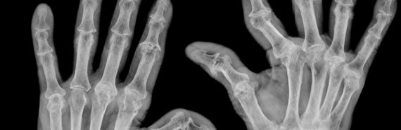 arthritis hands x-ray