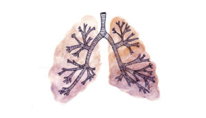 drawing of lungs - NKX2-1 mutation