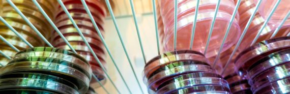 petri dishes in fridge - testing drug I-BET-762