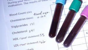 results of HDL cholesterol test
