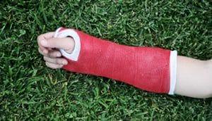Asthma and broken bones concept; arm in cast