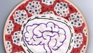 brain stitching