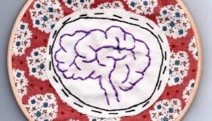 brain stitching (epilepsy probes concept)