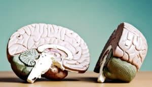 brain model split in two