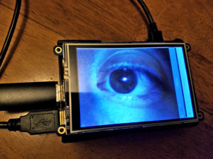 eye on screen medical device for doctors with disabilities