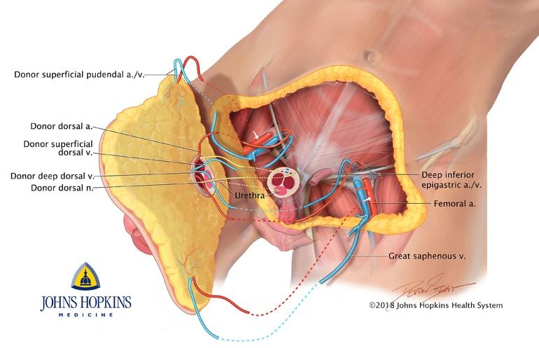 penis and scrotum transplant