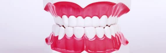 teeth model (cavities concept)