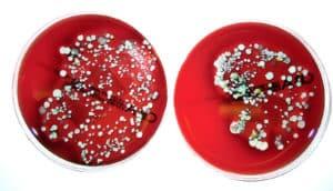 MRSA petri dishes