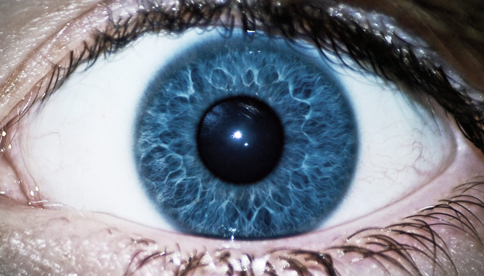 could this eye device detect schizophrenia futurity