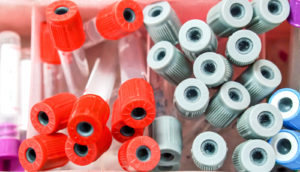 red and gray caps of blood sample tubes - exRNA