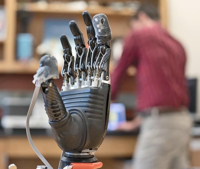 e-dermis on prosthetic hand