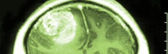 glioblastoma on brain scan - color added